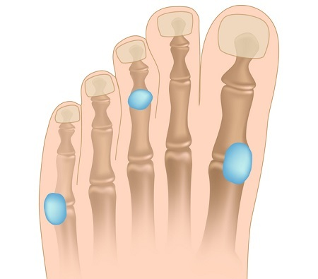 Bursitis of the toe.